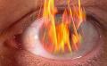 Термические ожоги и их влияние на зрение
