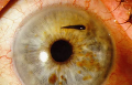 Поверхностные травмы глаз инородными предметами