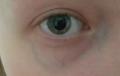 Варикоз глазных вен