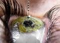 Глазные капли, которые не растекаются по лицу