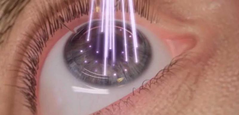 Лазерная терапия для лечения глаз