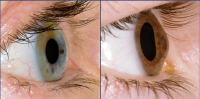 Можно заниматься ли луком с плохим зрением