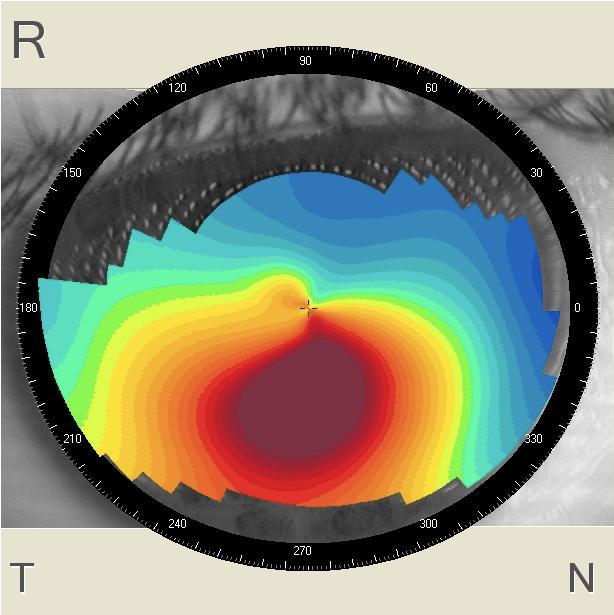 Дмс лазерная коррекция зрения