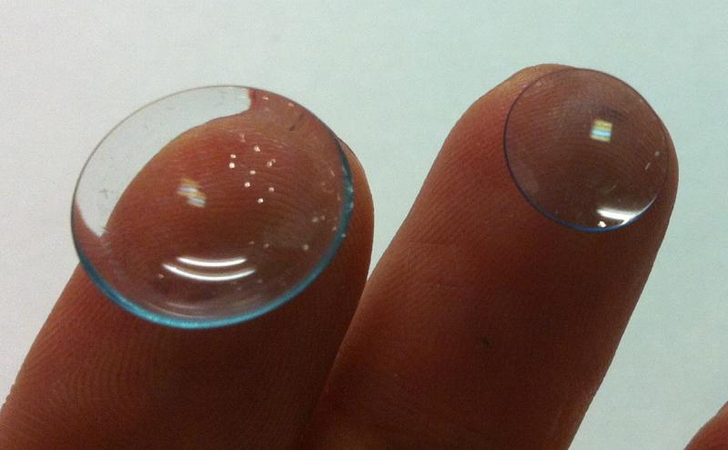 Кератоконус - Подбор контактных линз и очков - Кабинет врача ...