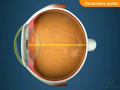Зрение один глаз 1 второй 0.1
